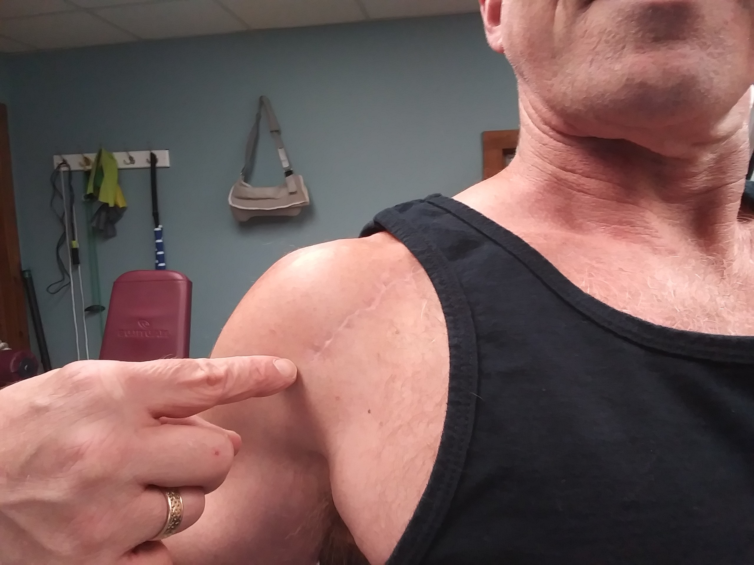 Bill DeSimone's shoulder surgery scar